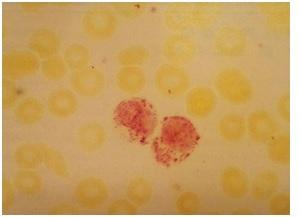 واکنش اسید فسفاتاز مثبت. اگر سلولهای مویی وجود داشته باشند رنگ آمیزی پس از افزودن تارتاریک اسید مثبت باقی خواهد ماند (اسمیر خون محیطی در فرد مبتلا به Hairy Cell Leukemia) X1000