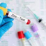 راه اندازی تست Zinc Transporter 8 Antibody