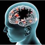 تشخیص بیماری آلزایمر در مدیکال