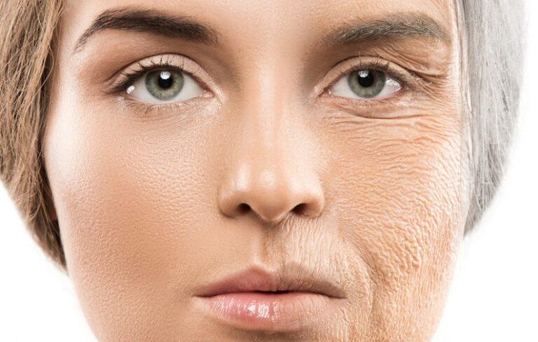 aging-skin-2